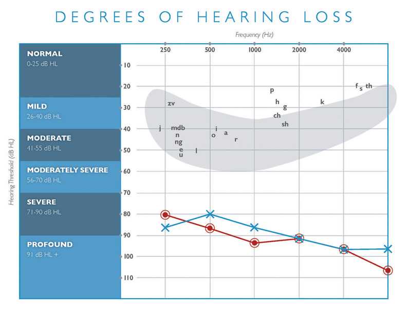 degrees of hearing loss